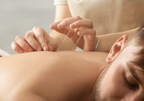 How Acupuncture Can Relieve Stress